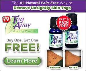 Tag Away As Seen On TV Removes Skin Tags