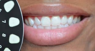 Dial A Smile Whiter Teeth in 20 Minutes